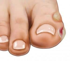blisters on toes from running