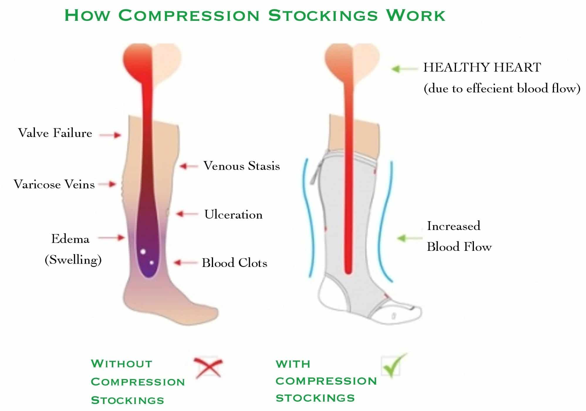 7f2119cfbf The 7 Benefits of Running Compression Socks - Train for a 5K.com