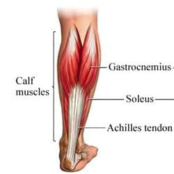 What causes calf tightness when running?