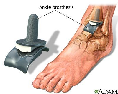 How to Treat Ankle Joint Pain from Running - One solution is Ankle Replacement Surgery