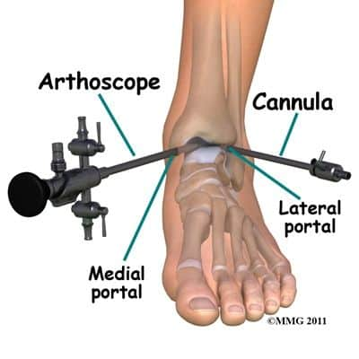 How to Treat Ankle Joint Pain from Running - One solution is Ankle Arthroscopy Surgery..