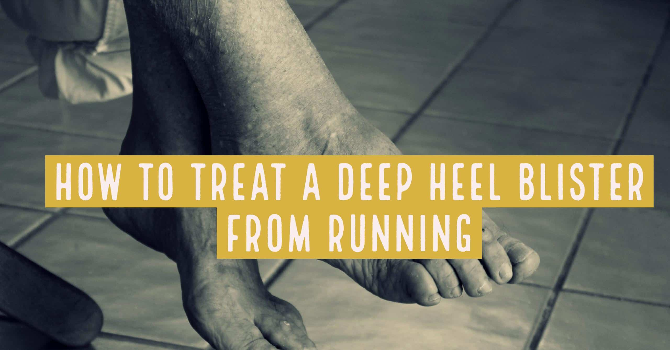 One of the worst mild injuries a runner can have is a deel heel blister. They can be formed by new shoes and bad socks. We go through how to prevention and treatment ways on a deep heel blister from running.