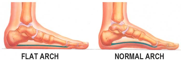 flat feet shoes vs normal